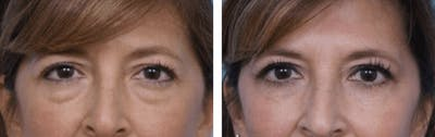 Dr. Balikian's Blepharoplasty Gallery - Patient 2167780 - Image 1