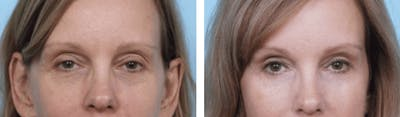 Dr. Balikian's Blepharoplasty Gallery - Patient 2167789 - Image 1