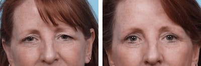 Dr. Balikian's Blepharoplasty Gallery - Patient 2167791 - Image 1