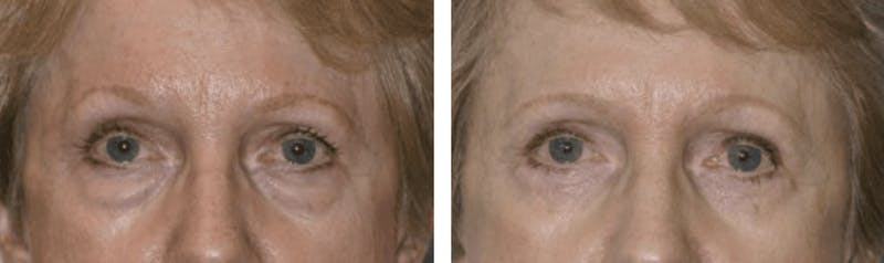 Dr. Balikian's Blepharoplasty Gallery - Patient 2167793 - Image 1