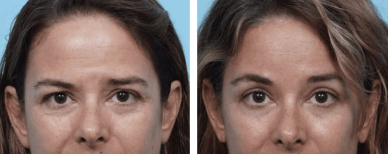 Dr. Balikian's Blepharoplasty Gallery - Patient 2167797 - Image 1
