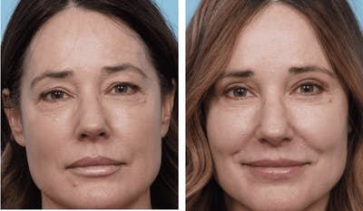 Dr. Balikian's Blepharoplasty Gallery - Patient 2167799 - Image 1