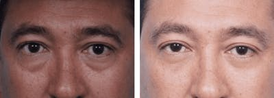 Dr. Balikian's Blepharoplasty Gallery - Patient 2167802 - Image 1