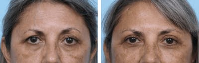 Dr. Balikian's Blepharoplasty Gallery - Patient 2167804 - Image 1