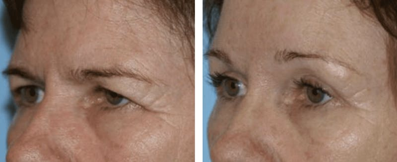 Dr. Balikian's Blepharoplasty Gallery - Patient 2167806 - Image 1