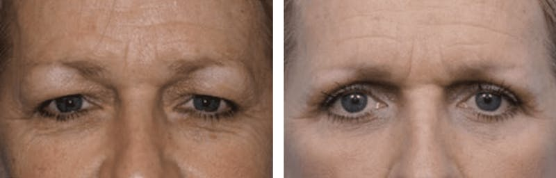 Dr. Balikian's Blepharoplasty Gallery - Patient 2167808 - Image 1