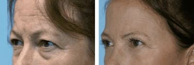Dr. Balikian's Blepharoplasty Gallery - Patient 2167810 - Image 1