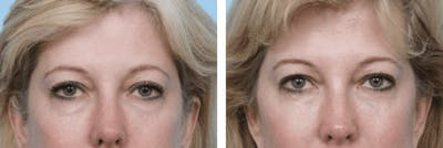 Dr. Balikian's Blepharoplasty Gallery - Patient 2167812 - Image 1
