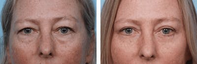 Dr. Balikian's Blepharoplasty Gallery - Patient 2167824 - Image 1