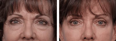 Dr. Balikian's Blepharoplasty Gallery - Patient 2167826 - Image 1