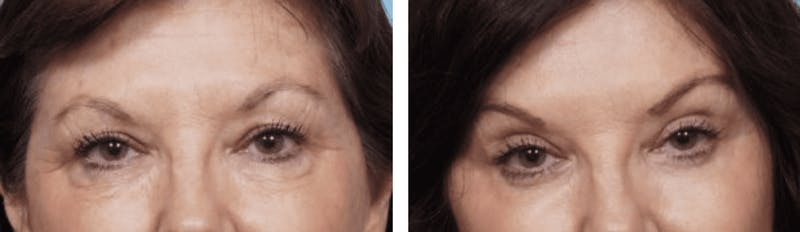 Dr. Balikian's Blepharoplasty Gallery - Patient 2167829 - Image 1