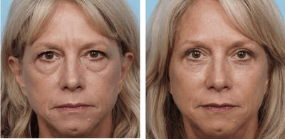 Dr. Balikian's Blepharoplasty Gallery - Patient 2167831 - Image 1