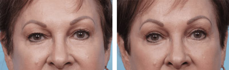Dr. Balikian's Blepharoplasty Gallery - Patient 2167833 - Image 1