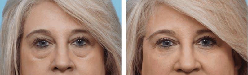 Dr. Balikian's Blepharoplasty Gallery - Patient 2167835 - Image 1
