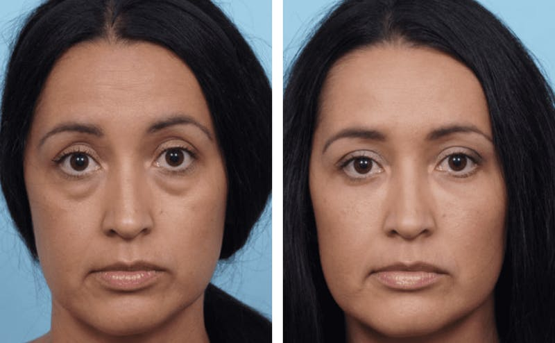Dr. Balikian's Blepharoplasty Gallery - Patient 2167837 - Image 1