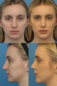 Rhinoplasty Gallery - Patient 2388174 - Image 1