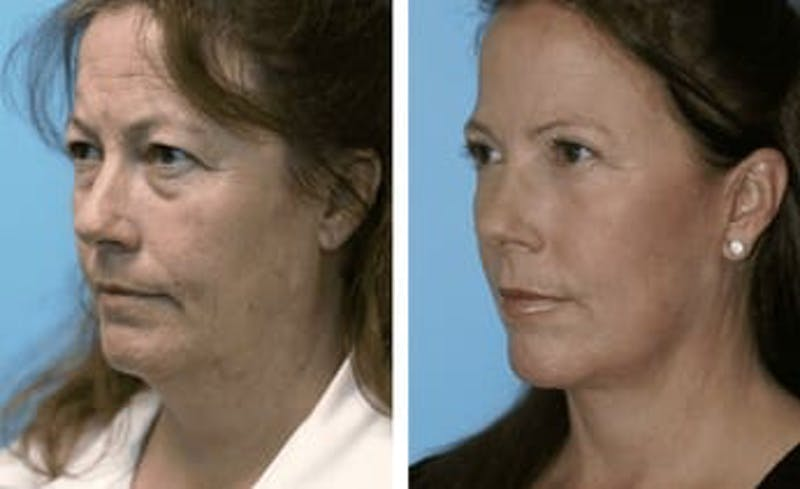 Dr. Balikian's Facelift Gallery - Patient 2167292 - Image 1
