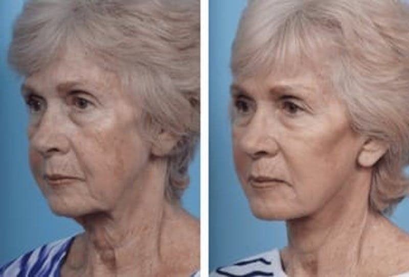 Dr. Balikian's Facelift Gallery - Patient 2167298 - Image 1