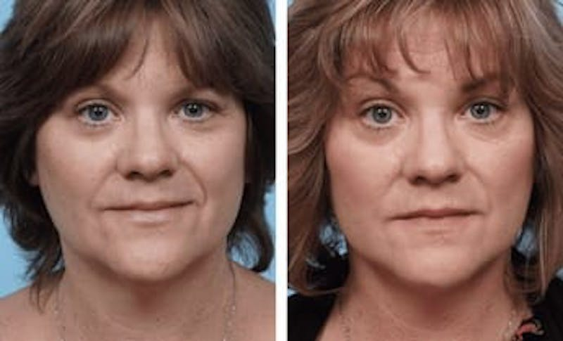 Dr. Balikian's Facelift Gallery - Patient 2167322 - Image 1