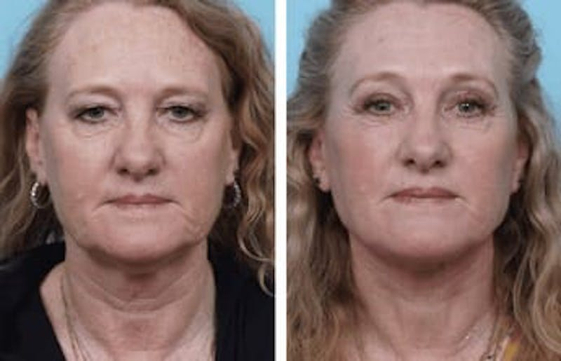 Dr. Balikian's Facelift Gallery - Patient 2167327 - Image 1