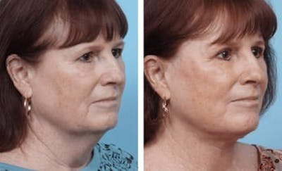 Dr. Balikian's Facelift Gallery - Patient 2167346 - Image 1