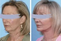 Dr. Balikian's Facelift Gallery - Patient 2167377 - Image 1