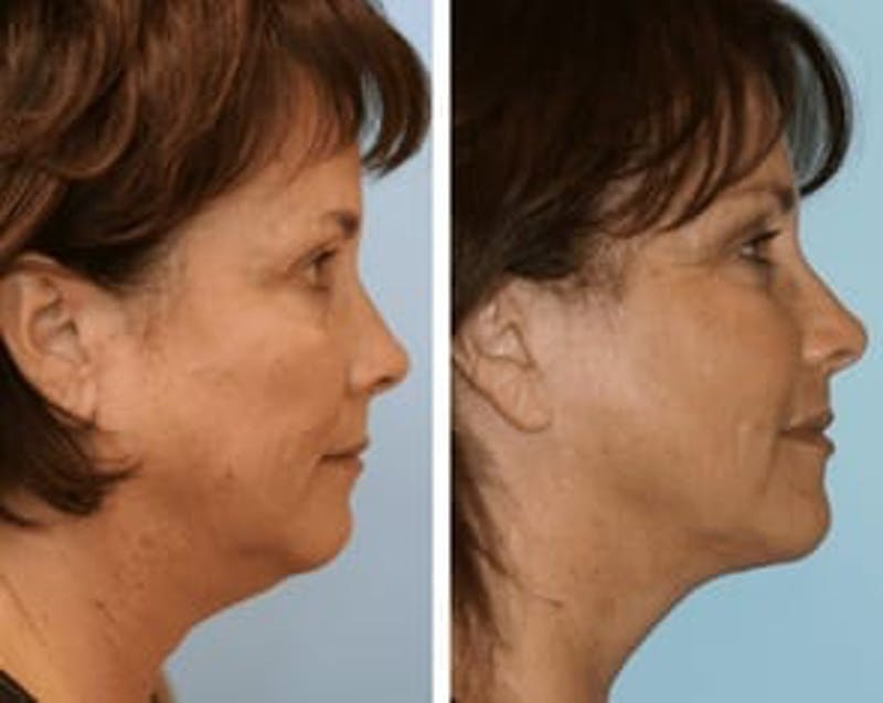 Dr. Balikian's Facelift Gallery - Patient 2167389 - Image 1