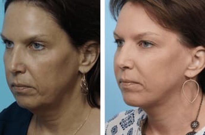 Dr. Balikian's Facelift Gallery - Patient 2167397 - Image 1