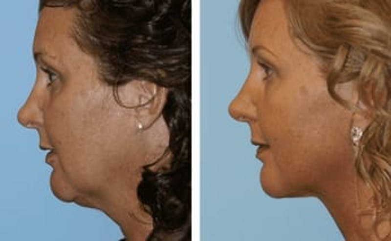 Dr. Balikian's Facelift Gallery - Patient 2167399 - Image 1