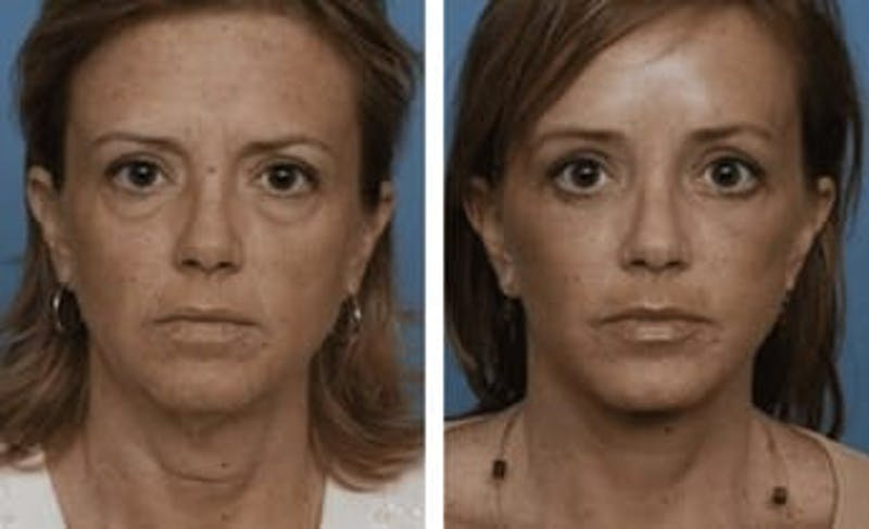 Dr. Balikian's Facelift Gallery - Patient 2167401 - Image 1
