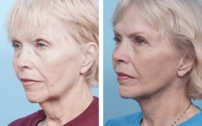 Dr. Balikian's Facelift Gallery - Patient 2167430 - Image 2