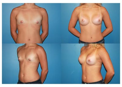 Large B Cup Augmentation Gallery - Patient 2396612 - Image 1