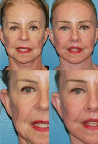 Brow Lift Gallery - Patient 2848099 - Image 1