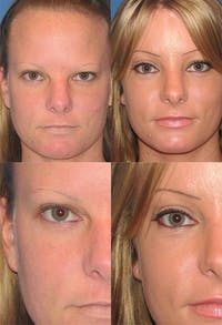 Brow Lift Gallery - Patient 2848100 - Image 1