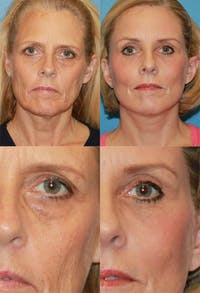 Brow Lift Gallery - Patient 2848101 - Image 1