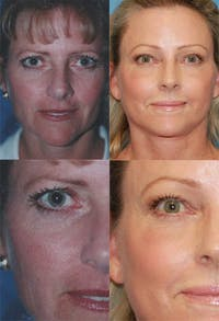 Brow Lift Gallery - Patient 2848102 - Image 1