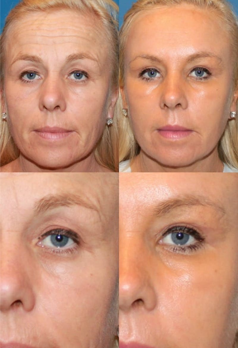 Brow Lift Gallery - Patient 2848103 - Image 1