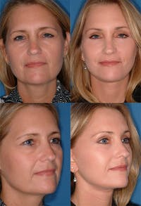 Brow Lift Gallery - Patient 2848104 - Image 1