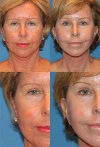 Brow Lift Gallery - Patient 2848105 - Image 1