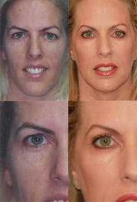 Brow Lift Gallery - Patient 2848107 - Image 1