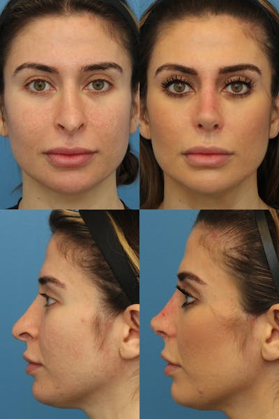 Prominent Nostril / Hanging Columella Gallery - Patient 3176167 - Image 1
