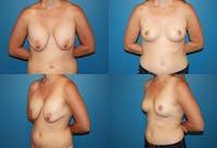 En Bloc Capsulectomy Gallery - Patient 2162084 - Image 1
