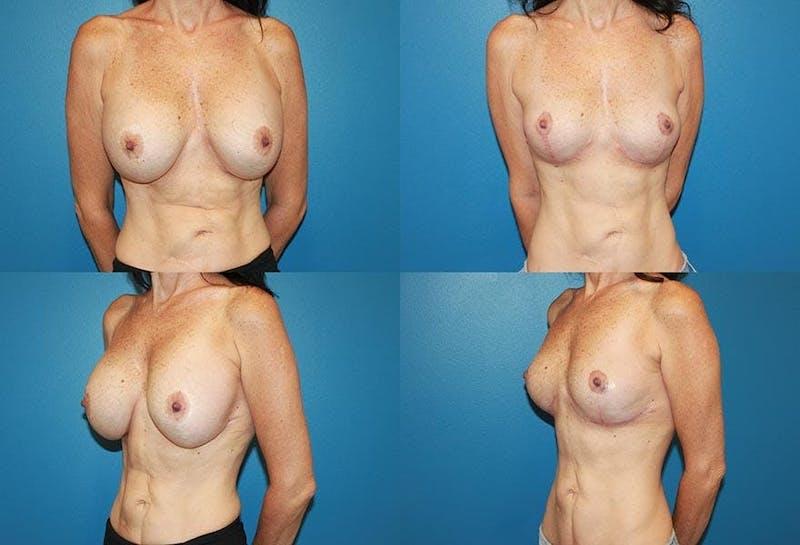 En Bloc Capsulectomy Gallery - Patient 3254329 - Image 1