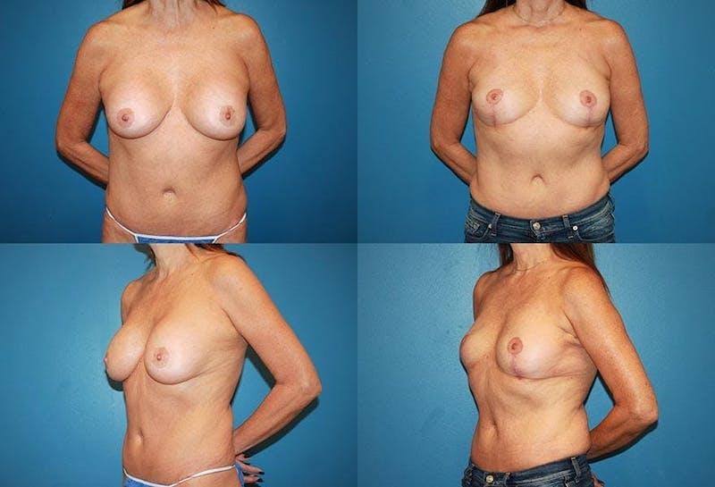 En Bloc Capsulectomy Gallery - Patient 3254331 - Image 1