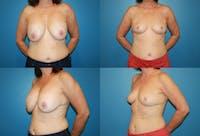 En Bloc Capsulectomy Gallery - Patient 3254333 - Image 1