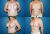 En Bloc Capsulectomy Gallery - Patient 3254334 - Image 1