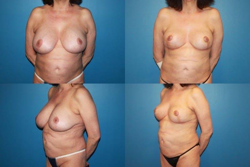 En Bloc Capsulectomy Gallery - Patient 3254335 - Image 1
