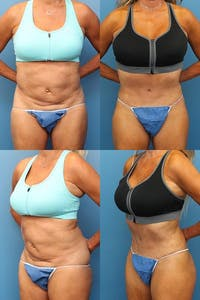 Tummy Tuck Gallery - Patient 3254354 - Image 1