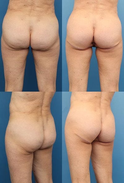 Thong Lift Gallery - Patient 3254566 - Image 1