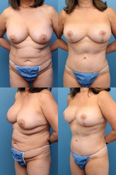 Mommy Makeover Gallery - Patient 2161935 - Image 1